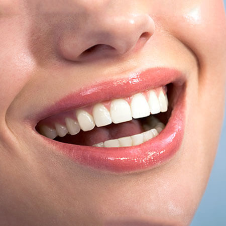 Close-up of a woman's smile after a cosmetic dentistry appointment