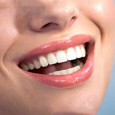 Close-up of a woman's beautiful smile after cosmetic dentistry in Palms Dentistry Greenville