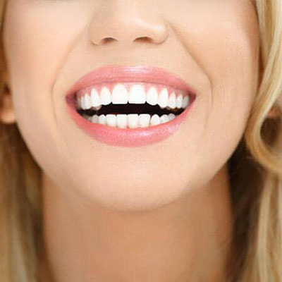 Close-up of a blonde woman's beautiful smile after a cosmetic dentistry appointment at Palms Dentistry in Greenville, SC.